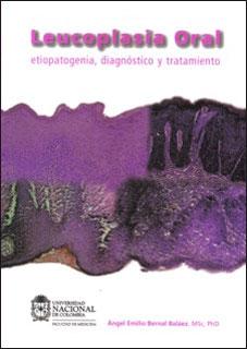 Leucoplasia Oral. Etiopatogenia, diagnóstico y tratamiento