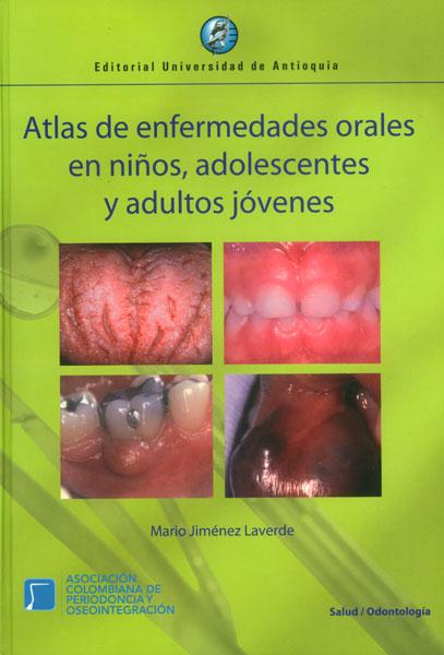 Atlas de enfermedades orales en niños, adolescentes y adultos jóvenes