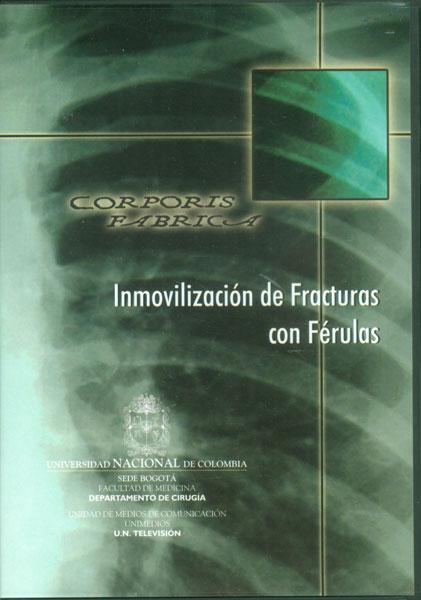 Inmovilización de fracturas con férulas