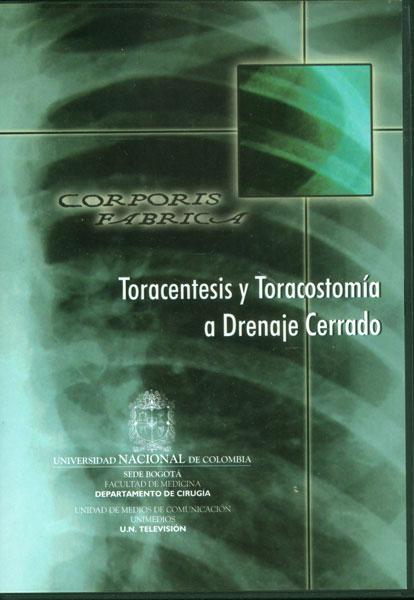 Toracentesis y Toracostomía a drenaje cerrado