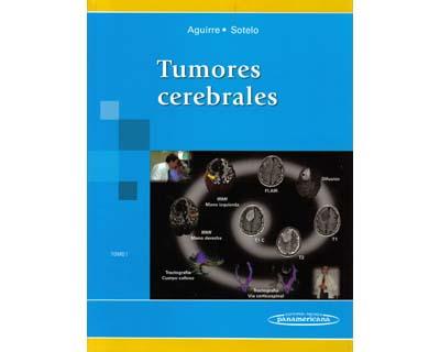 Tumores cerebrales. Tomo I
