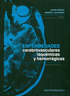 Enfermedades cerebrovasculares isquémicas y hemorrágicas