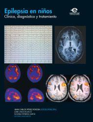 Epilepsia en niños. Clínica, diagnóstico y tratamiento