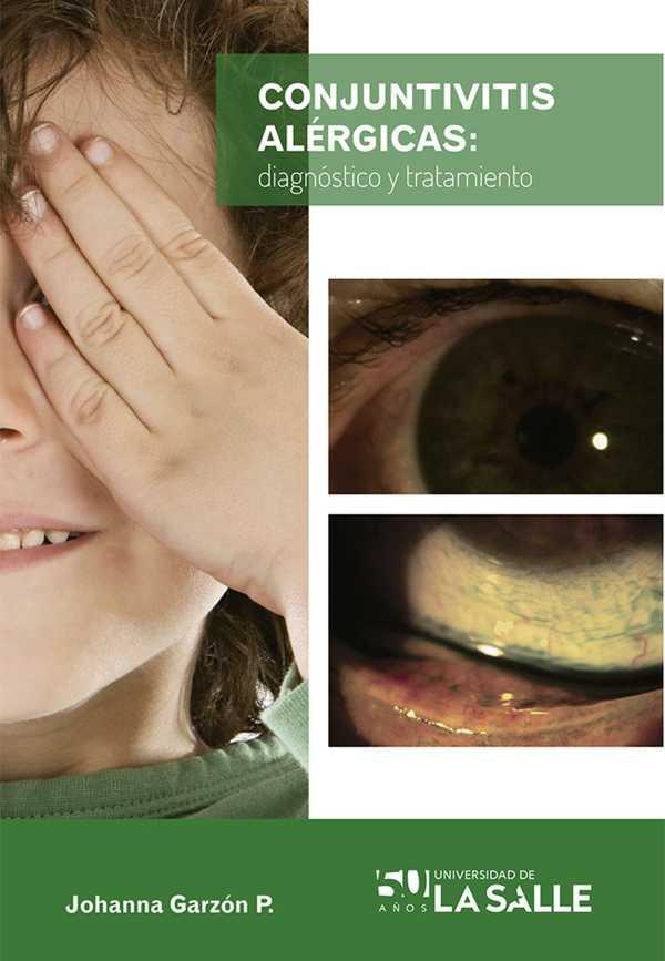 Conjuntivitis alérgicas. Diagnóstico y tratamiento